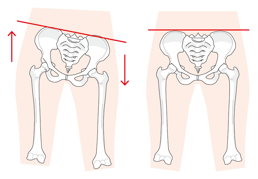 不妊骨盤子宮卵巣1